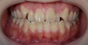 八重歯の矯正前の歯並び