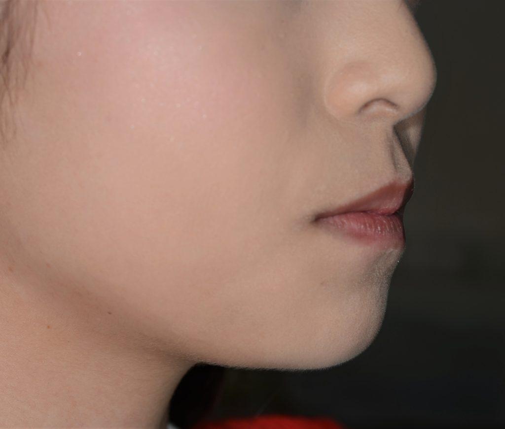 八重歯の矯正前の横顔・口元