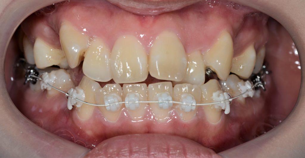歯列矯正を開始(裏側矯正&白いワイヤー)