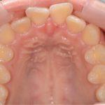 出っ歯を矯正する前の歯並び