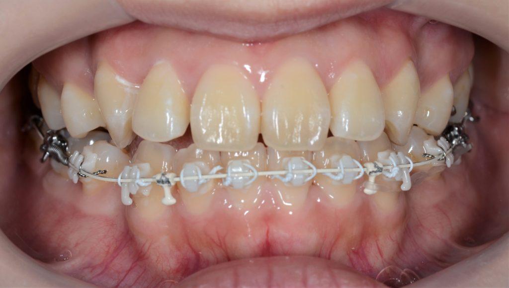 歯列矯正を開始して4カ月が経過