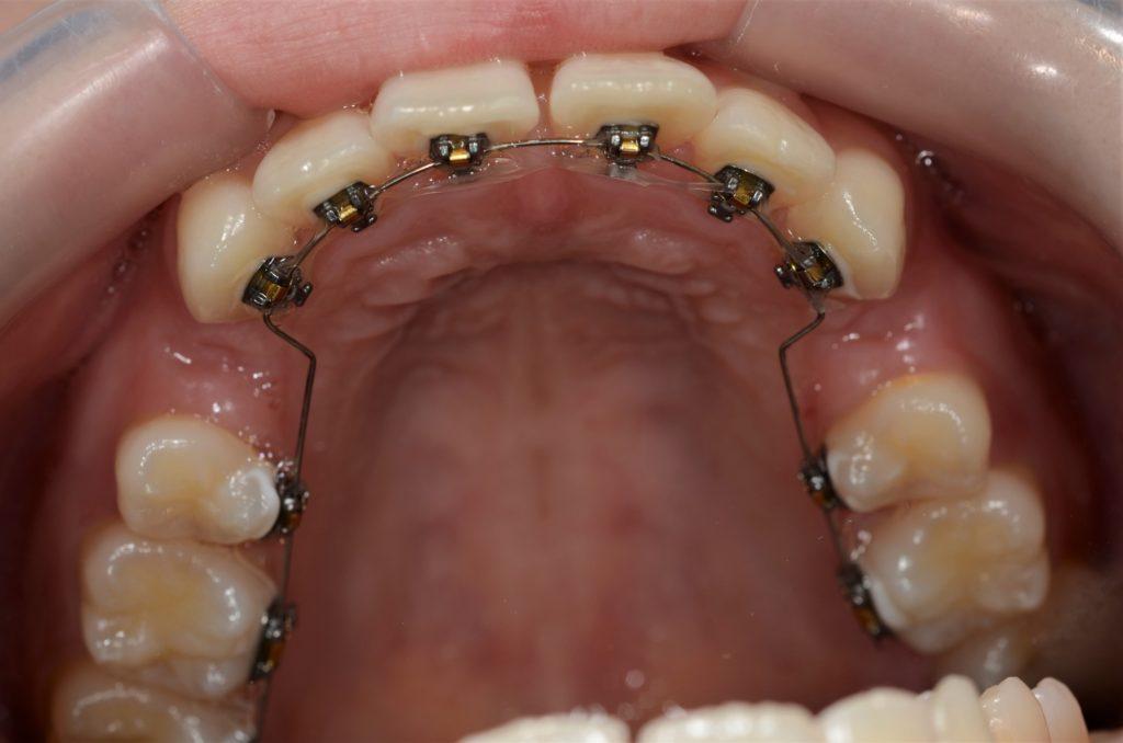 裏側矯正&白いワイヤーのハーフリンガルで歯列矯正を開始