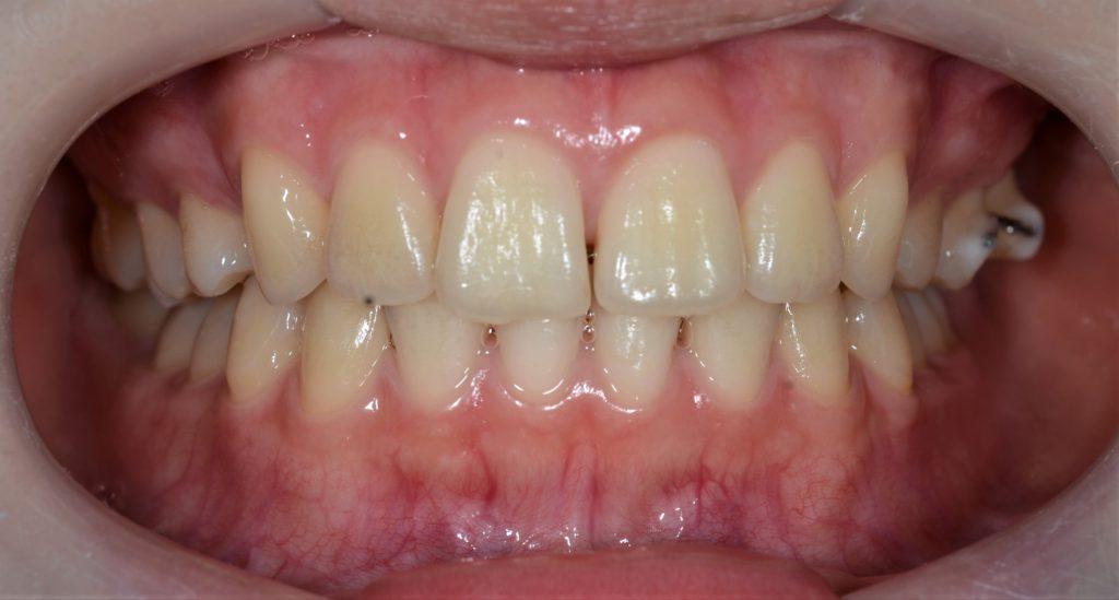 出っ歯を矯正した後の歯並び
