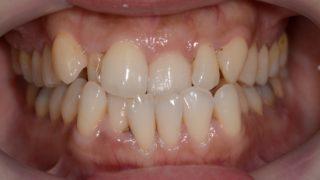 前歯のガタガタを矯正する前の歯並び
