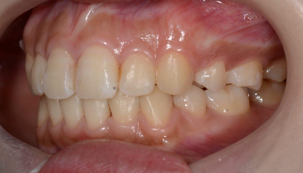 出っ歯に見える上下顎前突を矯正した後の歯並び