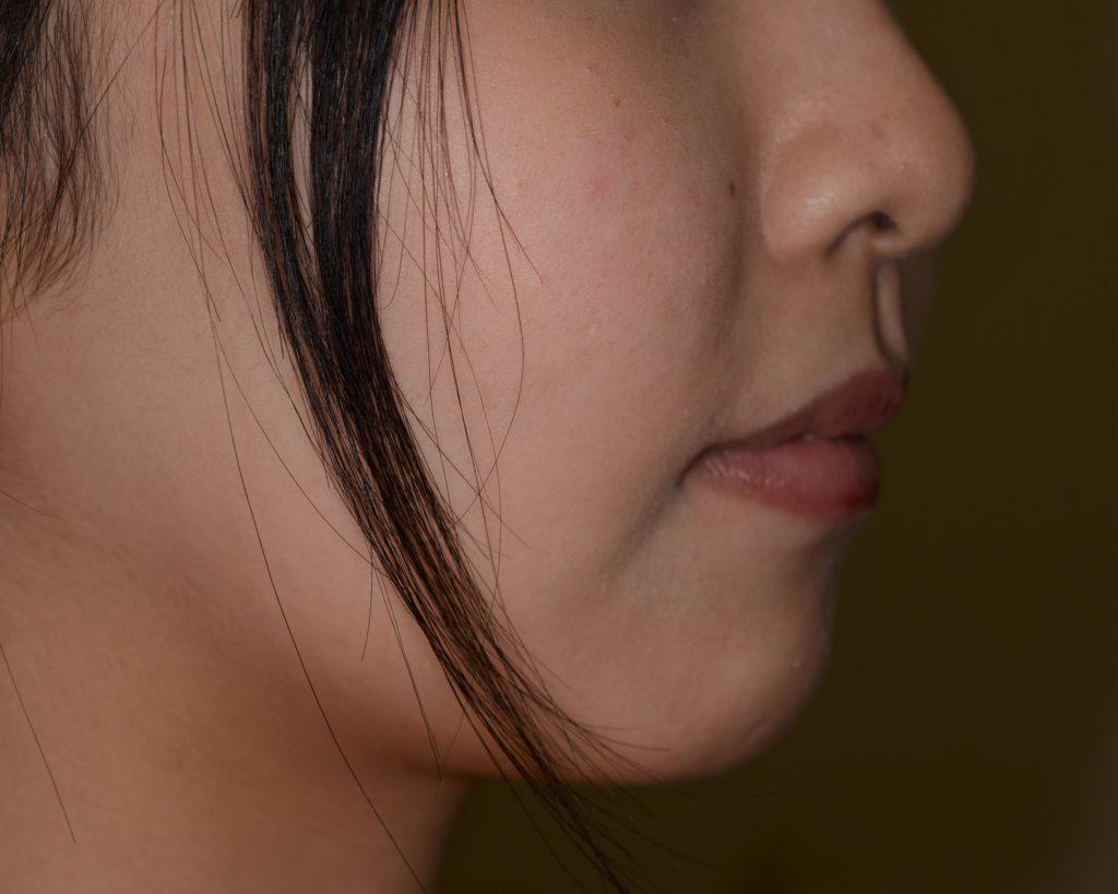 出っ歯に見える上下顎前突を矯正した後の横顔