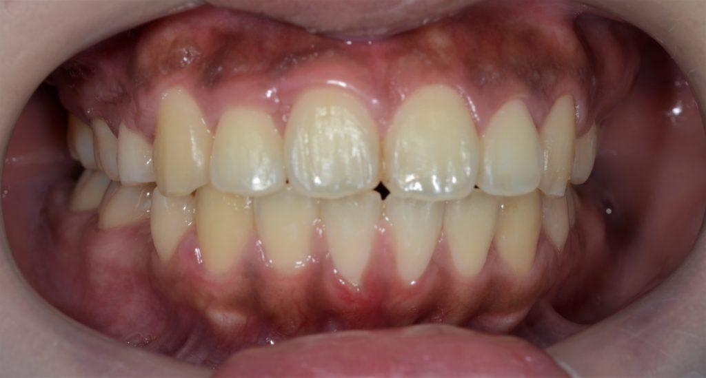 八重歯と出っ歯を治した後の歯並び