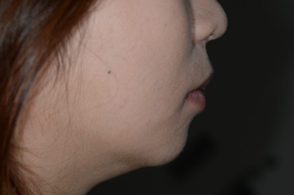 八重歯と出っ歯を治した後の横顔