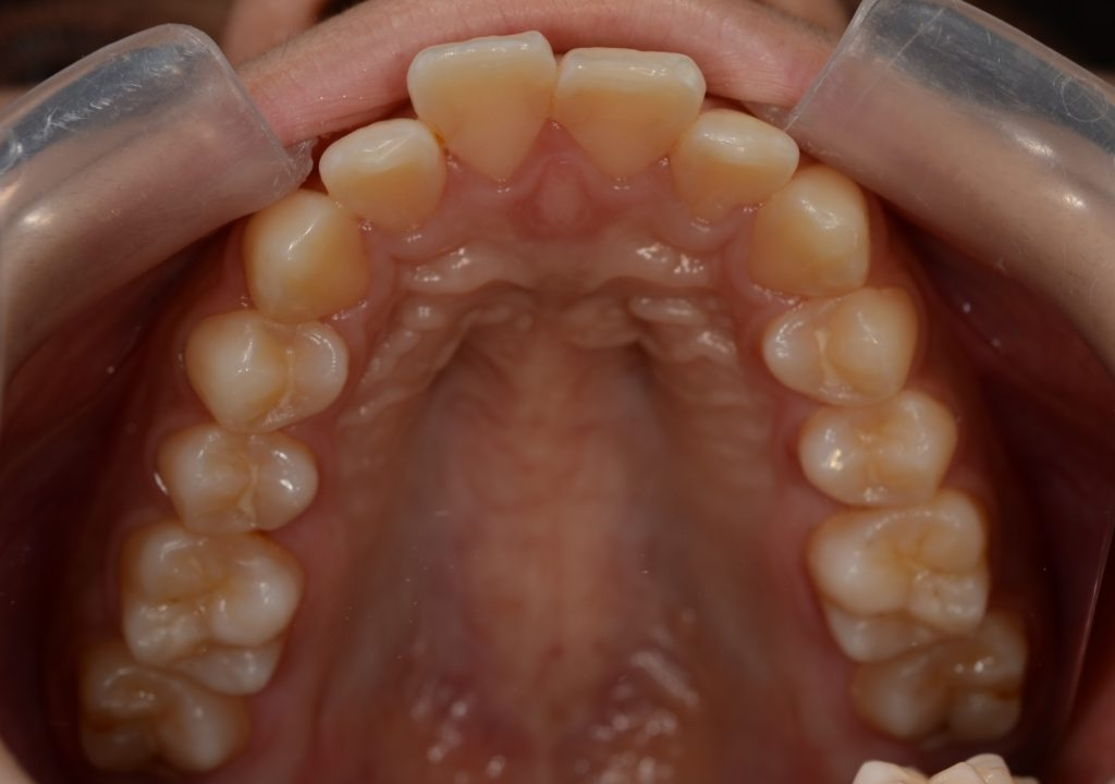 出っ歯に見える上下顎前突を矯正する前の歯並び