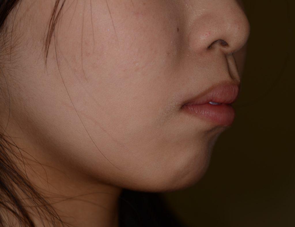 出っ歯に見える上下顎前突を矯正する前の横顔
