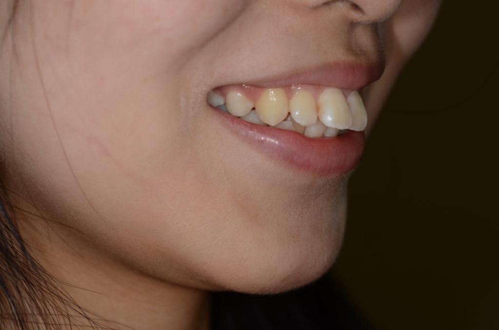 出っ歯に見える上下顎前突を矯正する前の笑顔
