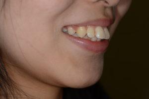 上下顎前突を矯正する前の笑顔