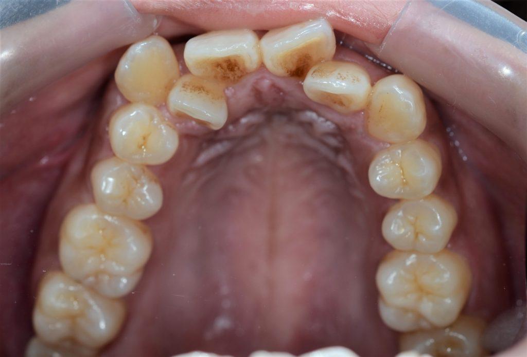 八重歯と出っ歯を治す前の歯並び