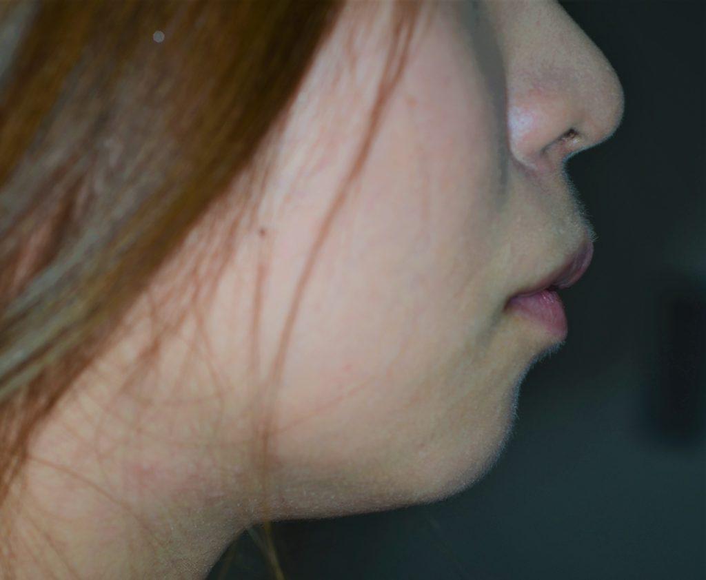 八重歯と出っ歯を治す前の横顔
