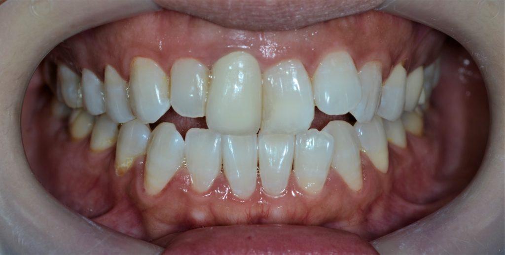 マウスピース矯正前の歯並び