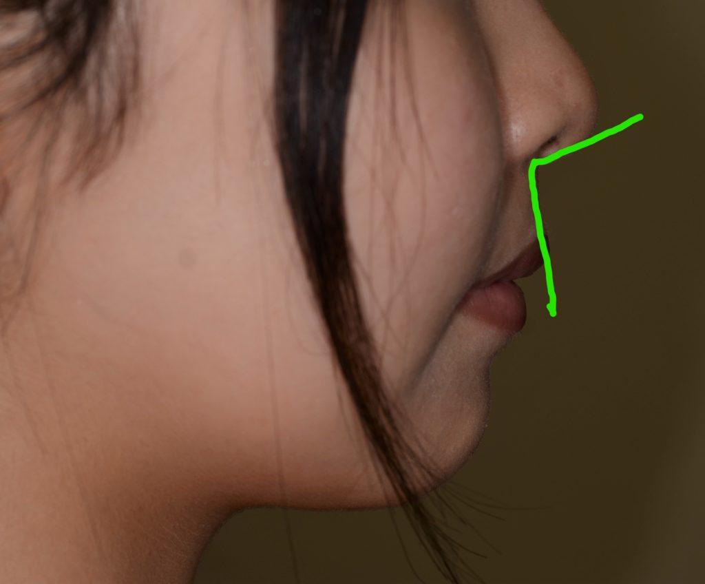 矯正後の鼻唇角