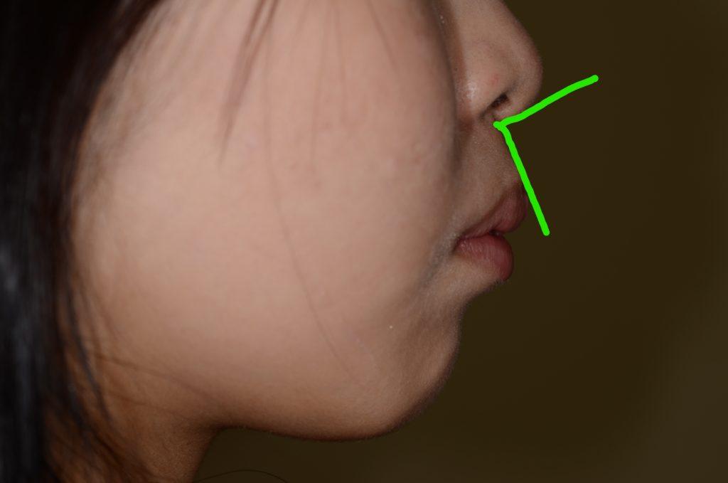 矯正前の鼻唇角