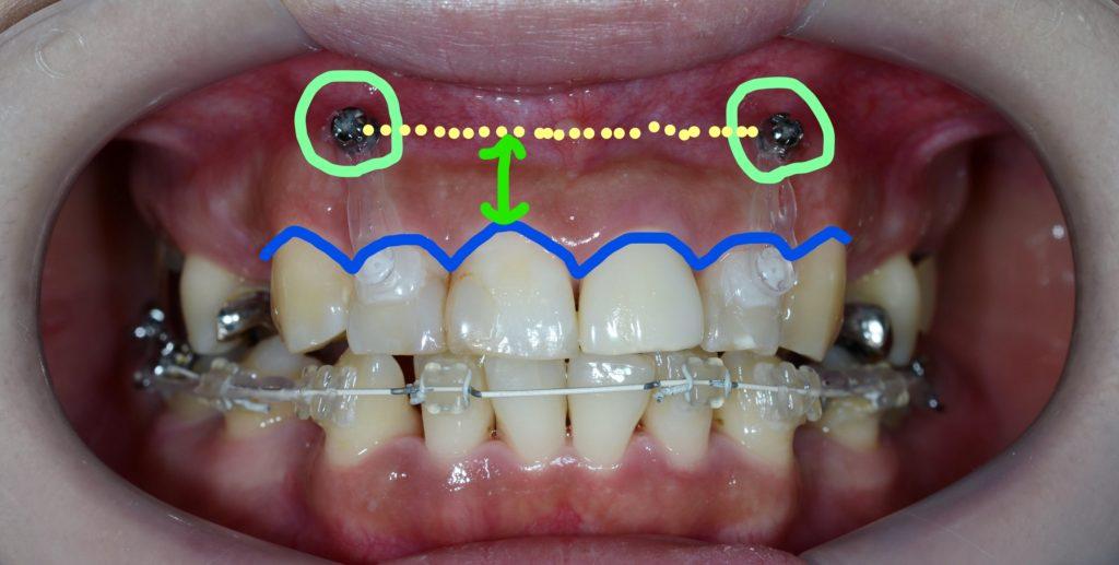 圧下の時の歯と歯茎の変化(治療前)