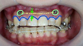 圧下の時の歯と歯茎の変化(治療後)