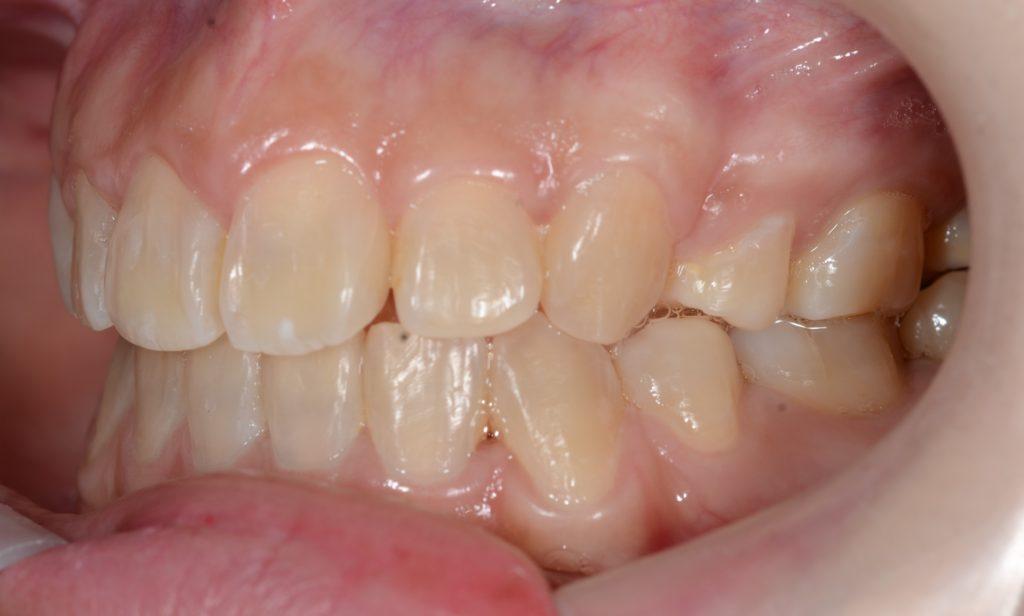 前歯が出てるのを治した矯正後の歯並び