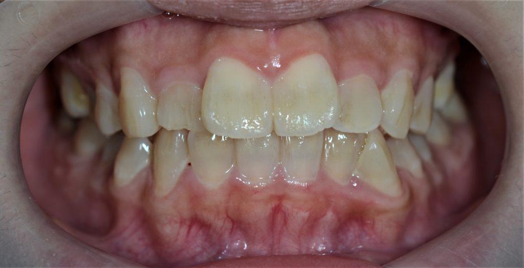 前歯が出てるのを治す矯正前の歯並び