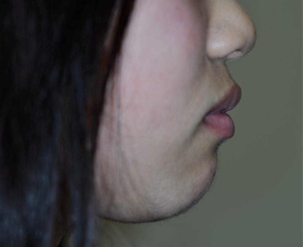 前歯が出てるのを治す矯正前の口元