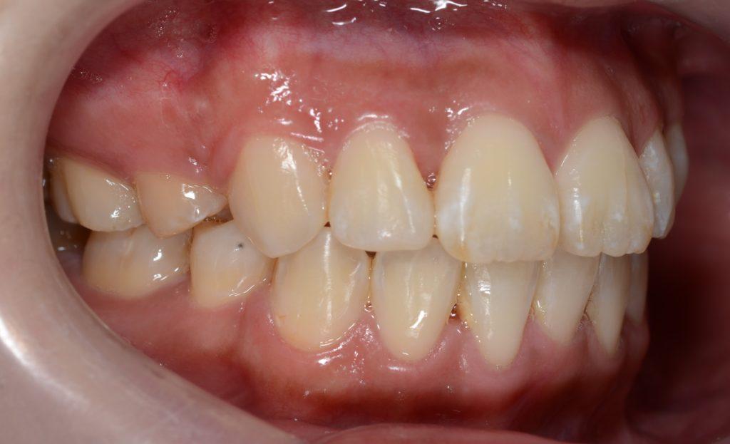 前歯のガタガタを矯正した後の歯並び